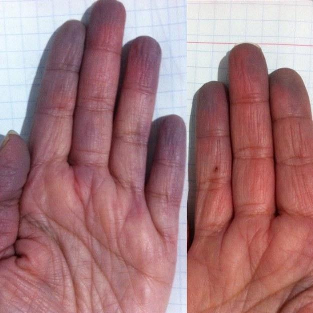 Rashes : MedlinePlus Medical Encyclopedia