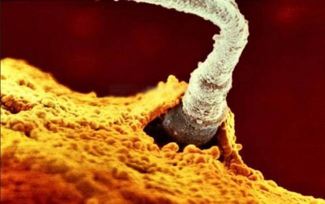 embryon-humain-lennart-nilsson-03