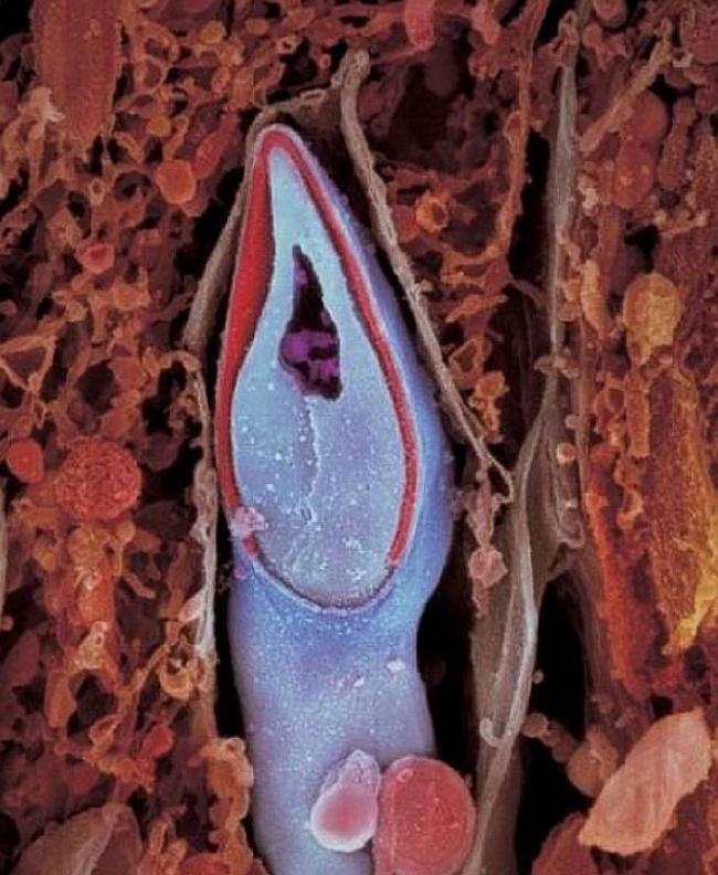 embryon-humain-lennart-nilsson-04