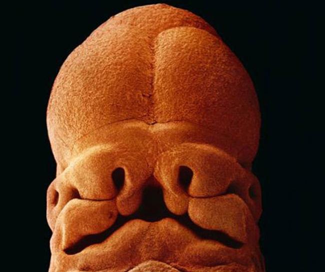 embryon-humain-lennart-nilsson-09
