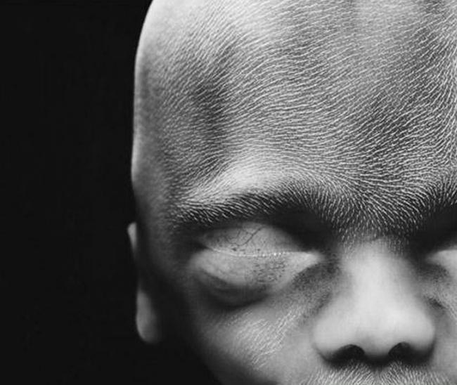 embryon-humain-lennart-nilsson-15