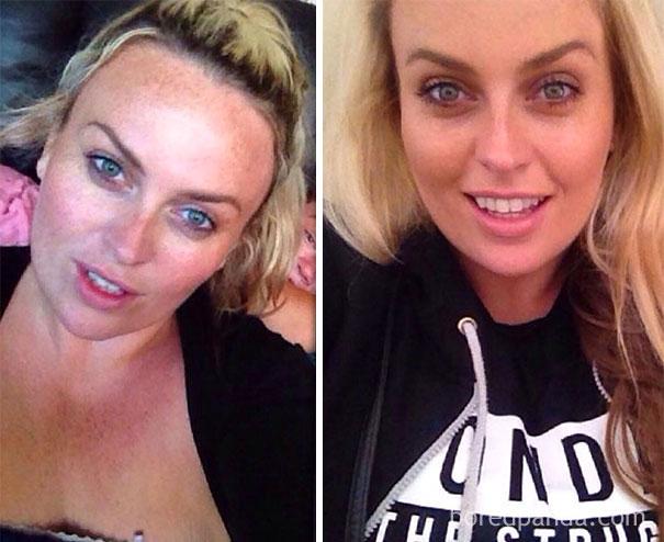 20 photos avant et après montrent ce qui se produit quand vous arrêtez de boire de l'alcool