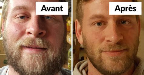 20 photos avant et après qui montrent ce qui arrive quand tu arrêtes de boire de l'alcool