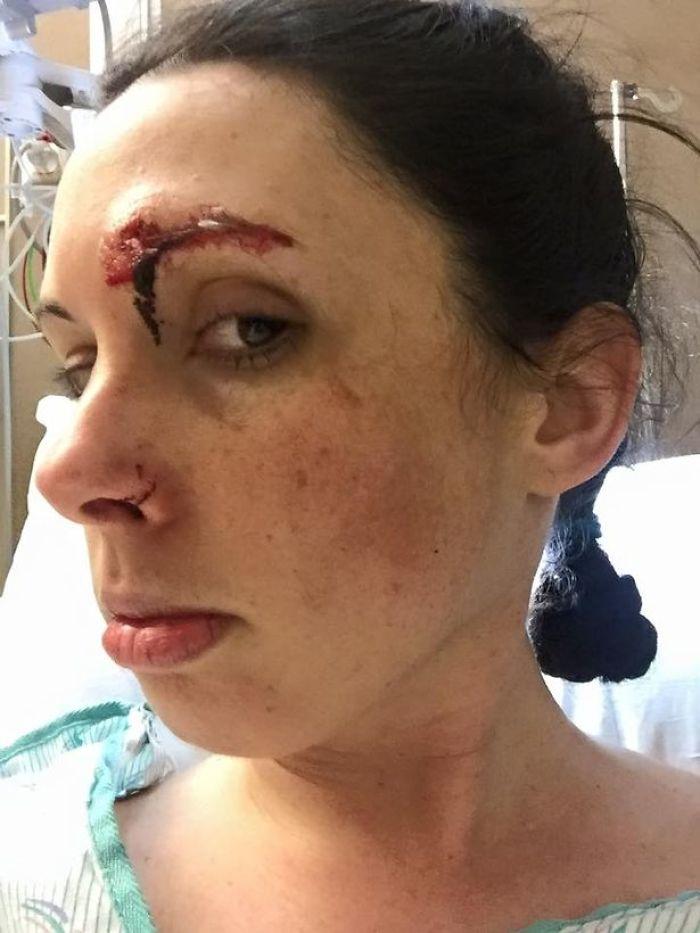 Un agresseur sexuel attaque une joggeuse, mais le visage de l'agresseur est en bien pire état que celui de la victime