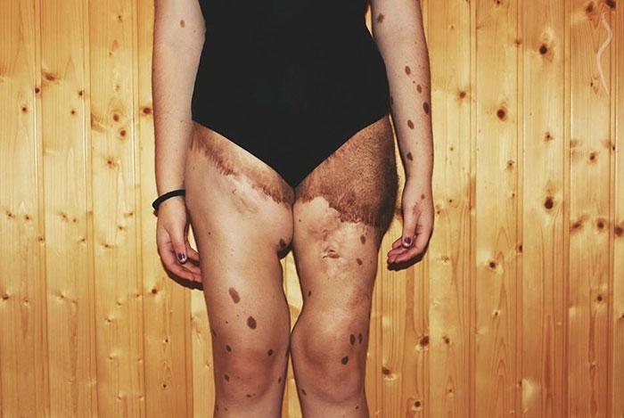 Cette adolescente avec 500 taches de naissance a été brutalement intimidée, mais regardez-la maintenant