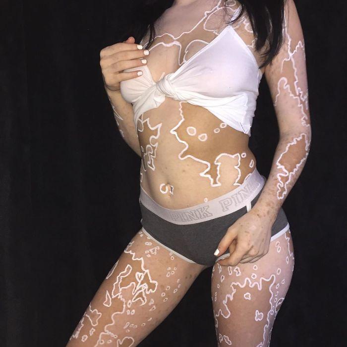 Ridiculisée toute sa vie à cause du vitiligo, elle décide de transformer son corps en oeuvres d'art