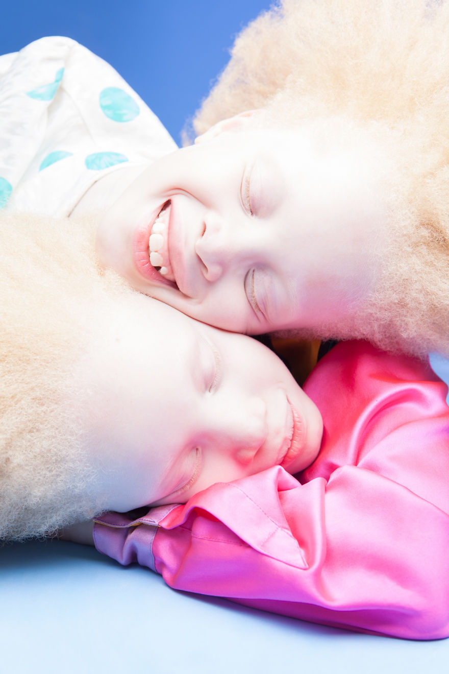Ces jumelles albinos font fureur dans le secteur de la mode grâce à leur beauté unique