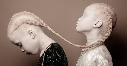 Une photographe saisit la beauté envoutante des albinos