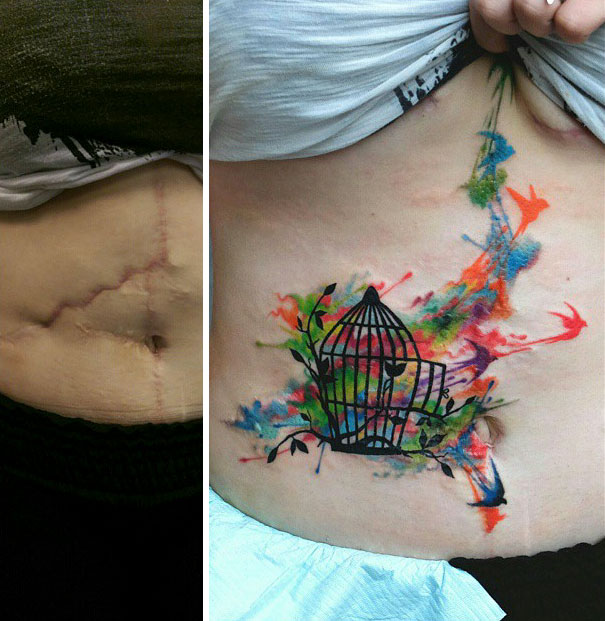 30 tatouages exceptionnels qui transforment les cicatrices en oeuvres d'art