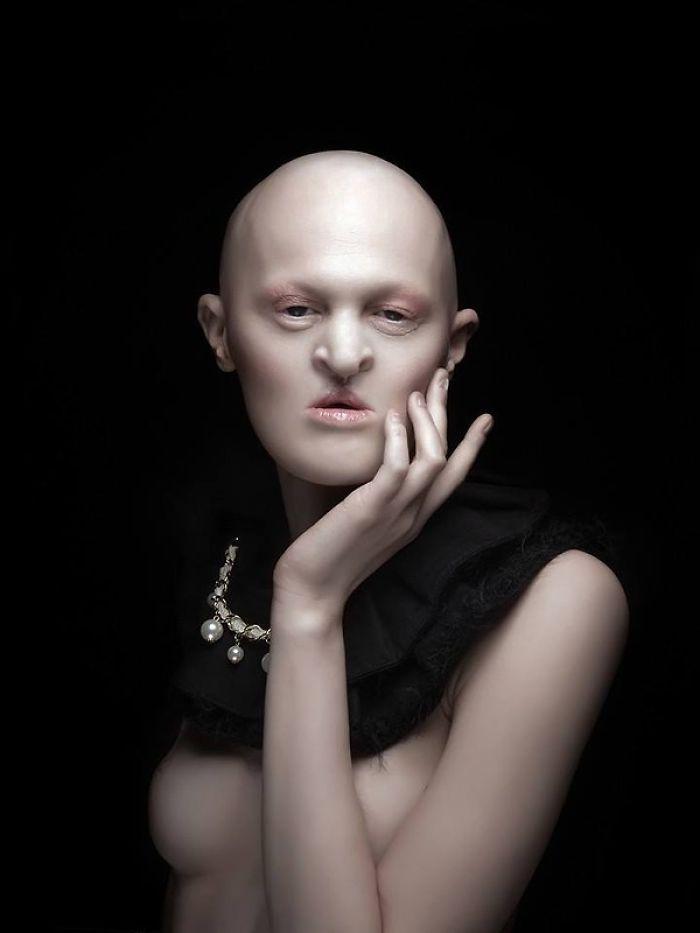 Cette mannequin de 28 ans atteinte d'une rare maladie génétique fracasse les stéréotypes de la mode