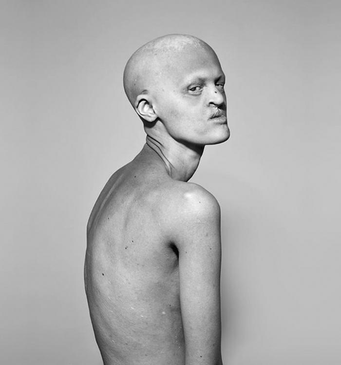 Voici Melanie Gaydos, une mannequin de 28 ans atteinte d'une rare maladie génétique qui a fracassé tous les stéréotypes de la mode
