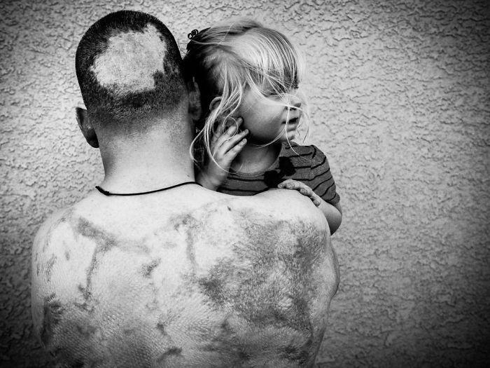 22 images bouleversantes qui montrent à quoi ressemblent certains vétérans après une décennie de guerre au Moyen-Orient