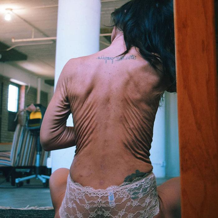 Cette femme de 26 ans tente de véhiculer un message positif au sujet de l'acceptation de soi