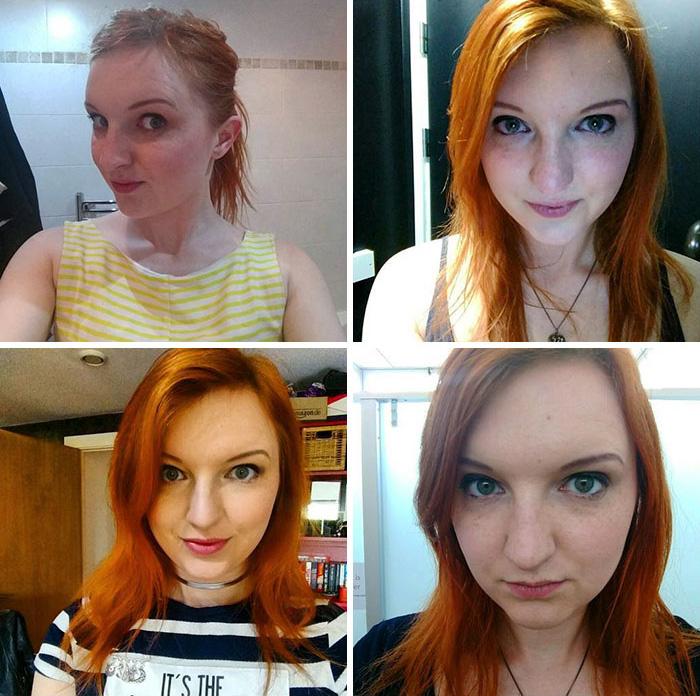 20 photos qui prouvent que la dépression n'a pas de visage