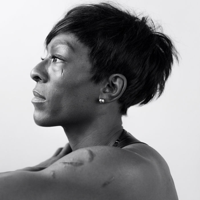 Des gens révèlent leurs cicatrices et comment ils les ont eues dans une puissante série de photos
