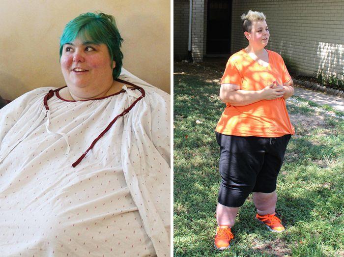 25 photos prises avant et après des transformations incroyables de personnes pesant environ 300 kilos