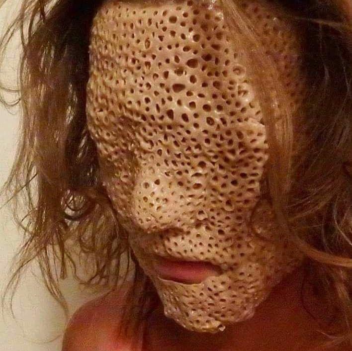 22 photos qui vous aideront à déterminer si vous souffrez de trypophobie