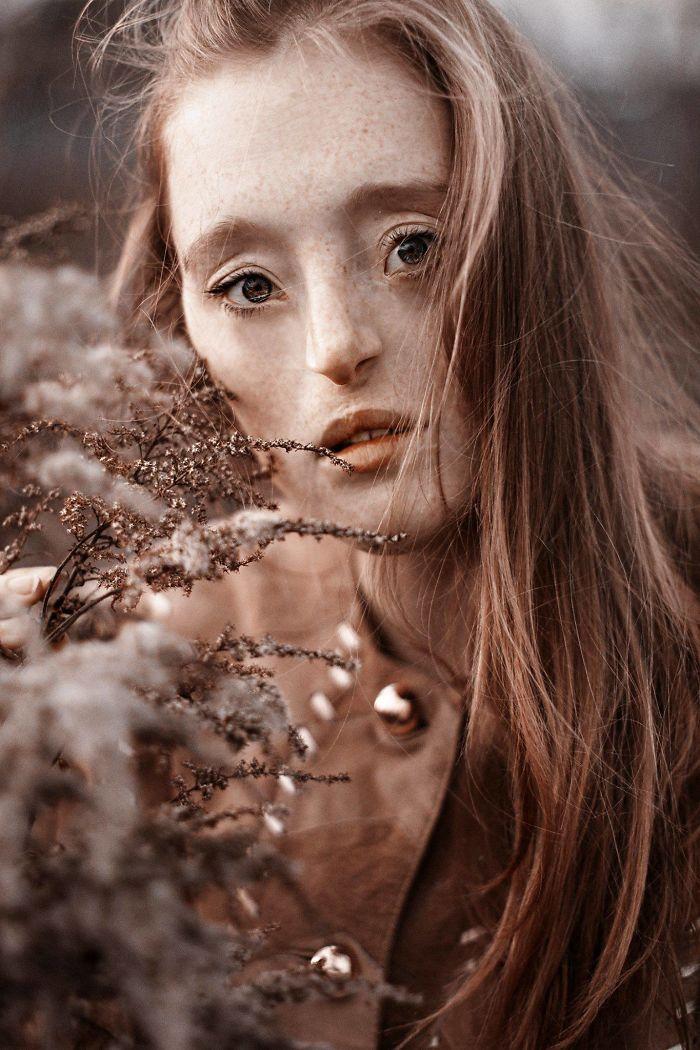 Cette femme de 26 ans est née avec une rare dysmorphie faciale et elle fracasse les normes de beauté avec sa carrière de mannequin