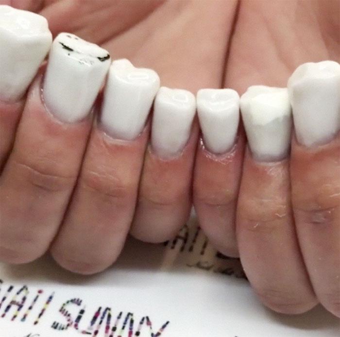 Les ongles en forme de dents existent, et si vous pensez que ça ne peut pas être pire, regardez cette vidéo