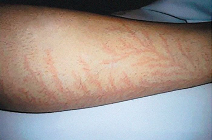 19 personnes qui ont survécu à un coup de foudre montrent ce que ça fait à votre peau