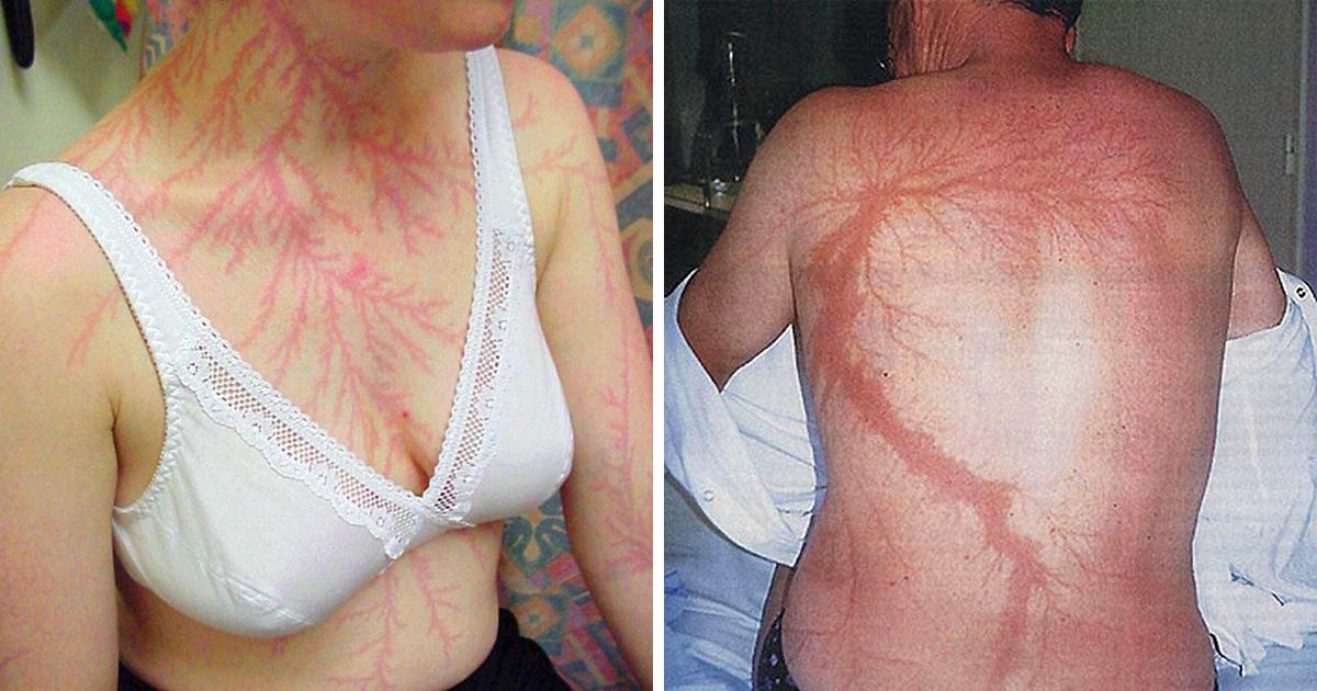 19 personnes qui ont survécu à un coup de foudre montrent ce que ça fait à la peau