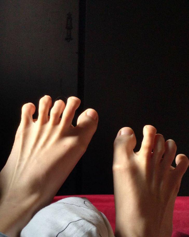 Des gens partagent des photos des parties insolites de leur corps et les internautes veulent en voir plus
