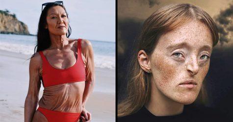 11 caractéristiques fascinantes du corps que vous ne verrez peut-être qu'une fois dans votre vie