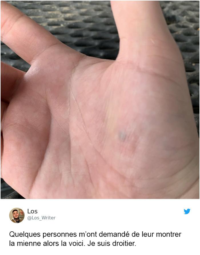 Apparemment, les cicatrices de crayon existent et il y a plus de personnes touchées que vous ne le pensez