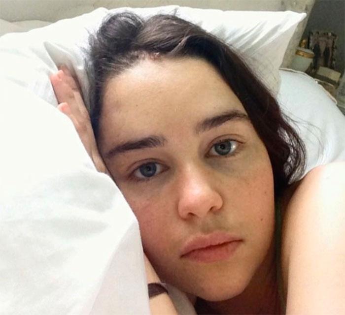 Emilia Clarke a partagé 5 photos inédites prises à l'hôpital après avoir eu deux anévrismes
