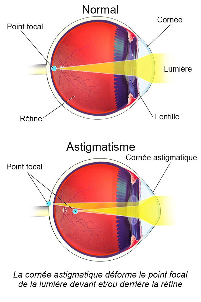 Des gens ont réalisé qu'ils étaient atteints d'astigmatisme quand cette photo comparative est devenue virale