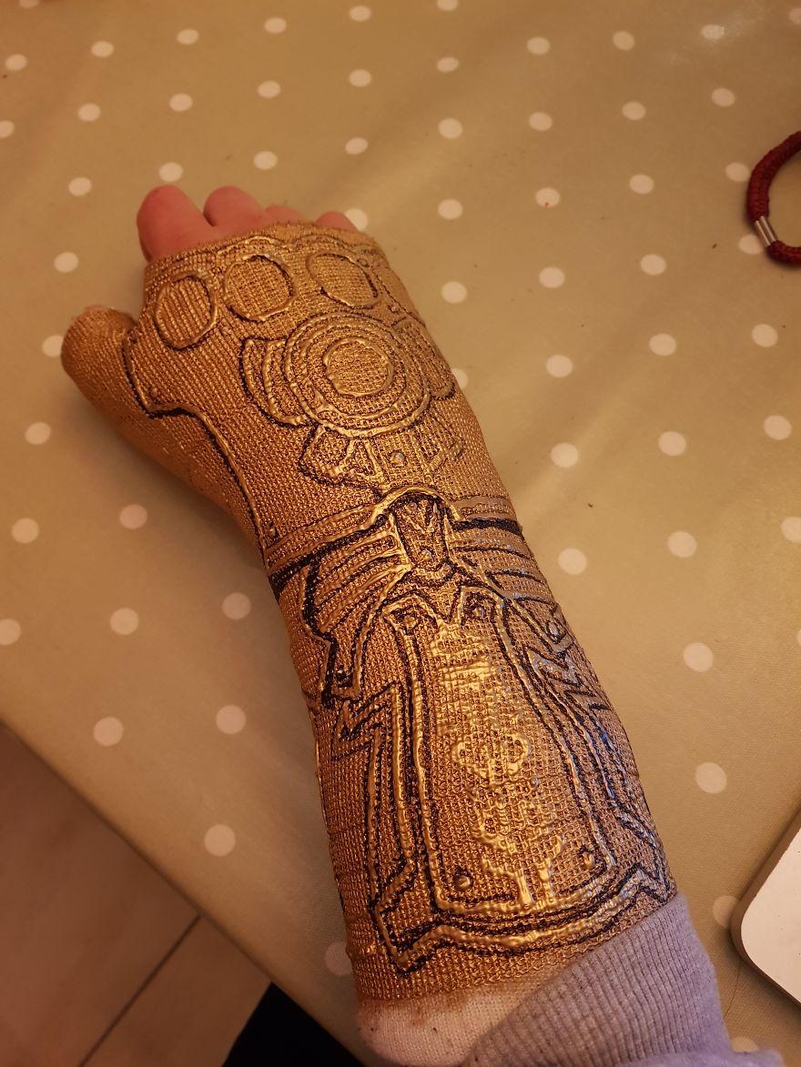 Après m'être cassé le poignet, j'ai transformé mon plâtre en «Gant de l'Infini» de Thanos