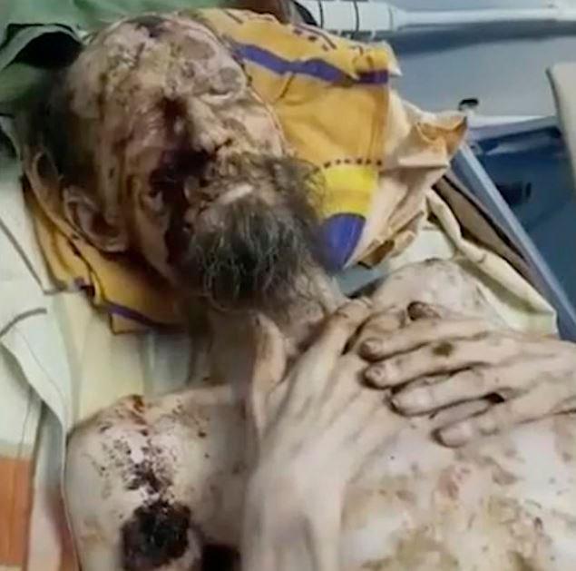 Un médecin a déclaré que «l'homme momifié mutilé par un ours» est son patient qui souffre de psoriasis grave