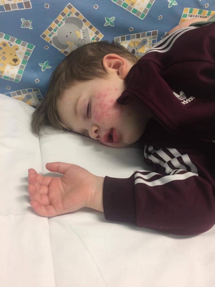 Un enfant en bas âge a été «presque aveuglé» après avoir attrapé l'herpès lorsqu'il a été embrassé par un membre de sa famille