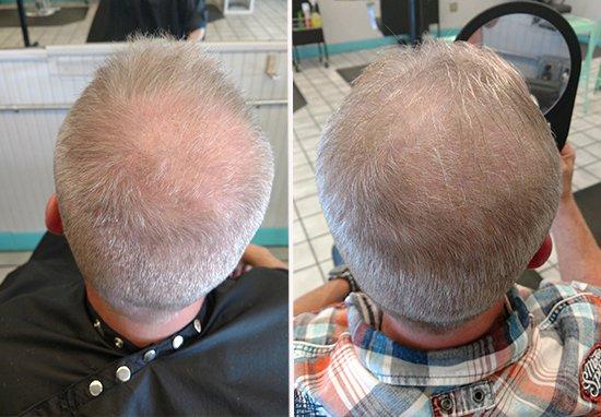 Cet homme prétend que boire son pipi a fait repousser ses cheveux