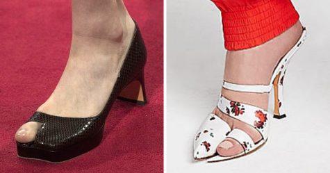 Les chaussures gros orteil sont maintenant à la mode, apparemment