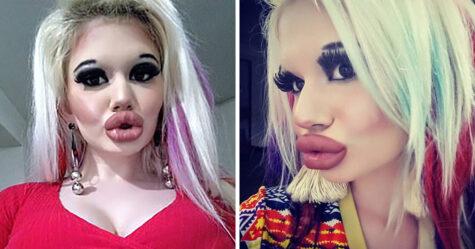 Cette femme a triplé la taille de ses lèvres pour être «plus à la mode»