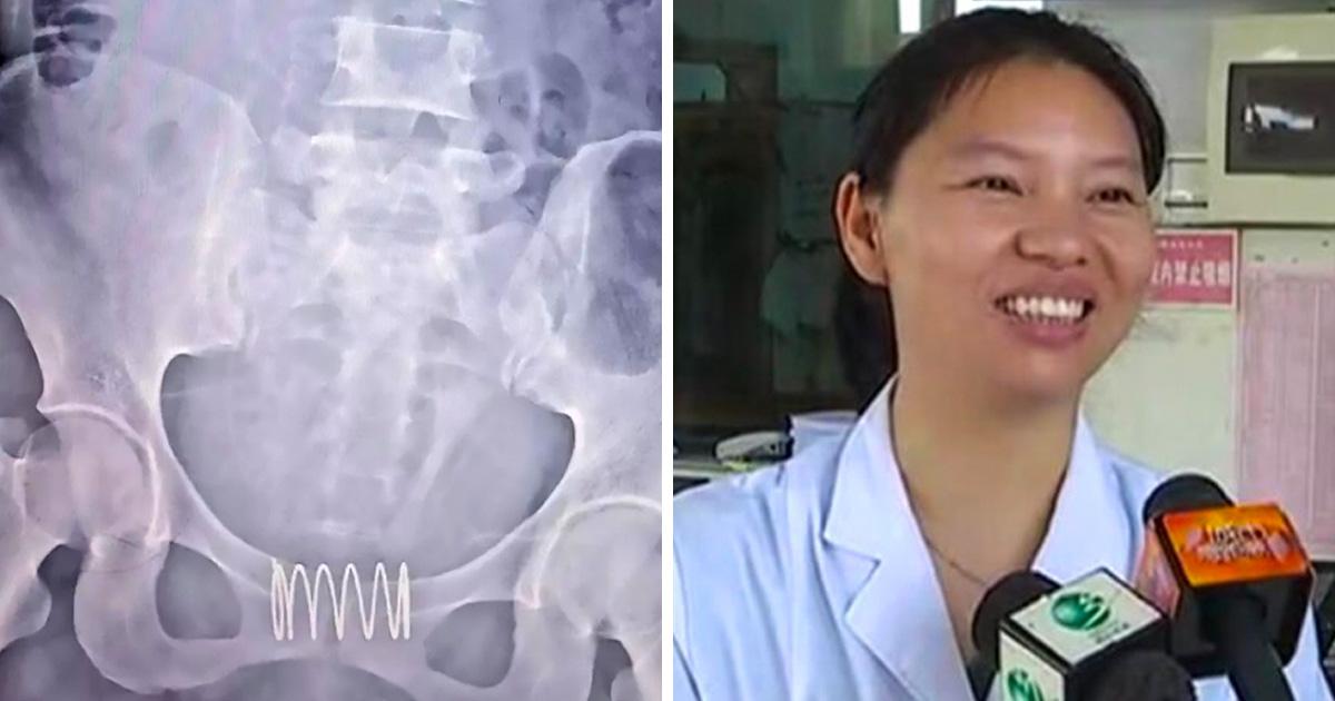Une femme s'est inséré un ressort dans le vagin en pensant que cela fonctionnerait comme contraceptif
