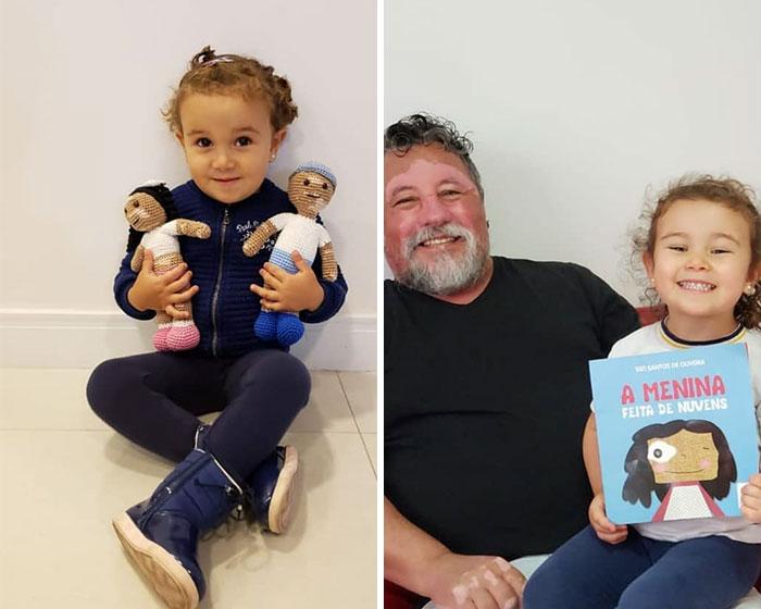 Ce grand-père est atteint de vitiligo et crochète des poupées pour aider les enfants avec cette maladie à se sentir mieux