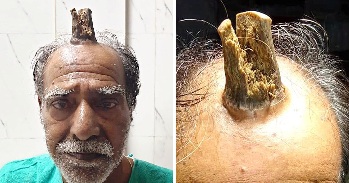 Cet homme a été horrifié lorsqu'une «corne du diable» de 10 cm lui a poussé sur la tête