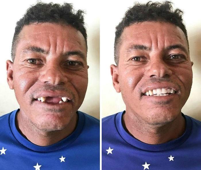 Ce dentiste voyage pour soigner gratuitement les dents des pauvres et voici 22 transformations