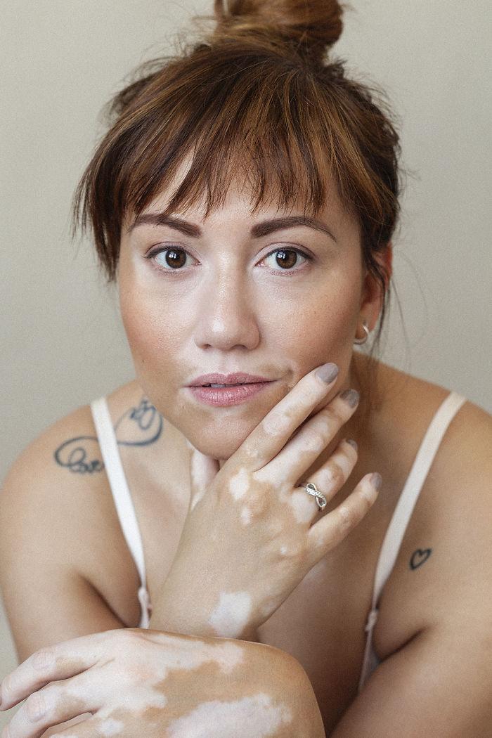 33 belles femmes atteintes de vitiligo capturées par une photographe souffrant de la même maladie