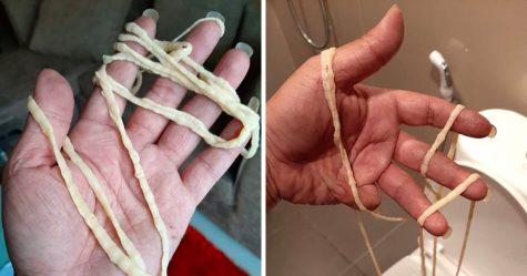 Un homme a été horrifié après avoir retiré de ses fesses un immense ver solitaire vivant