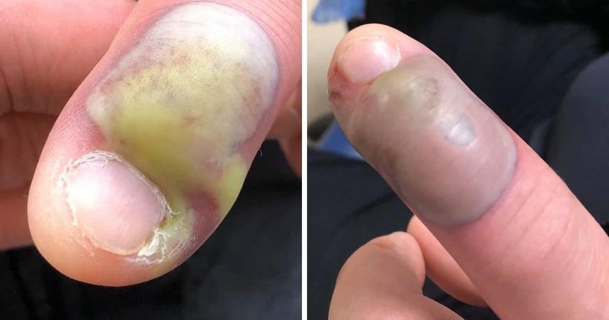 Un homme a contracté une infection mortelle après s'être rongé les ongles