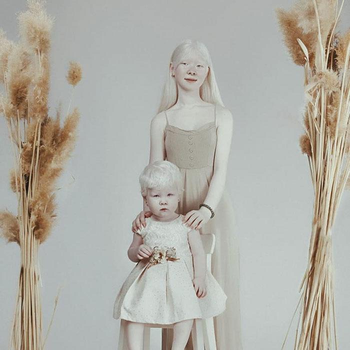 Ces soeurs albinos nées à 12 ans d'intervalle ont stupéfié la planète entière par leur beauté extraordinaire (24 images)