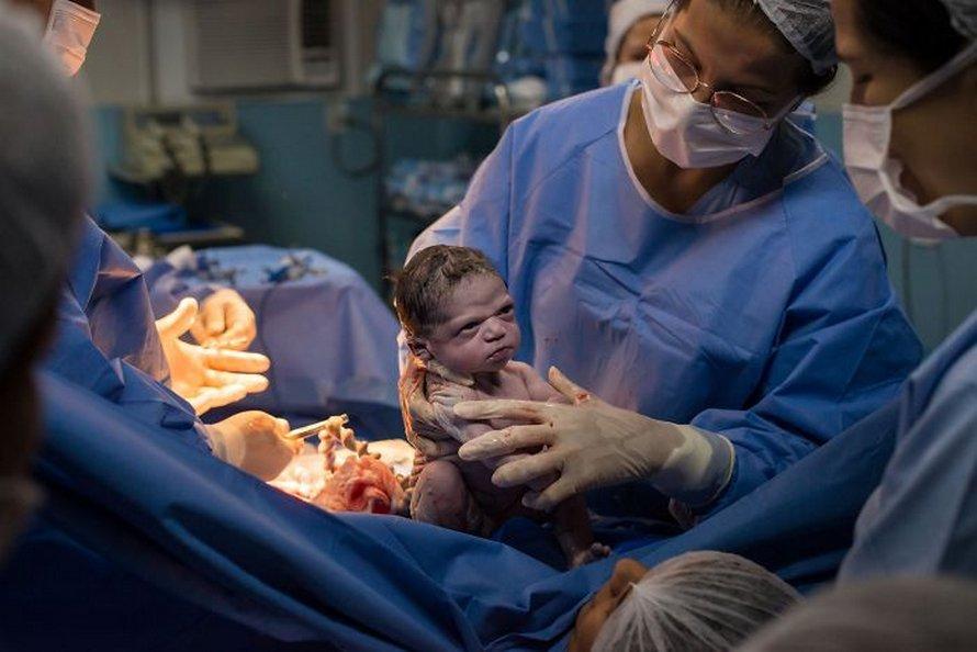 Cette petite fille a dévisagé les médecins après sa naissance et sa maman a dit qu'elle est «née pour être un mème»