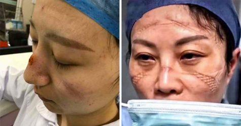 Des infirmières chinoises ont partagé des photos de leur visage après d'innombrables heures de lutte contre le coronavirus