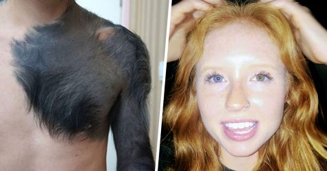 Voici des personnes qui ont été rendues uniques par la génétique