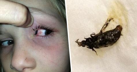 Ils découvrent un coléoptère géant rampant dans la tête d'une petite fille
