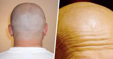 Les hommes chauves pourraient être plus à risque de développer des symptômes plus graves de COVID-19