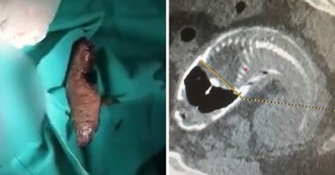 Un homme se retrouve avec un poisson entier coincé dans le rectum après s'être assis dessus «par hasard»